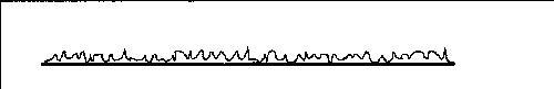 Профиль звуковой дорожки АНАЛОГОВЫЙ И ЦИФРОВОЙ ЗВУК на фонографе при сильном увеличении